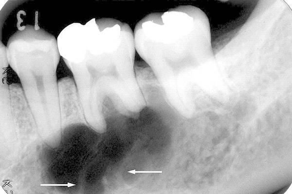 Гранулема зуба: лечение в домашних условиях народными средствами