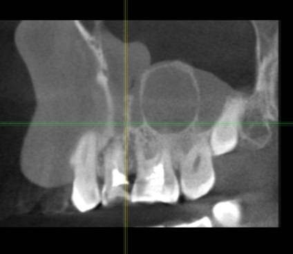 В гайморовой пазухе корни зубов