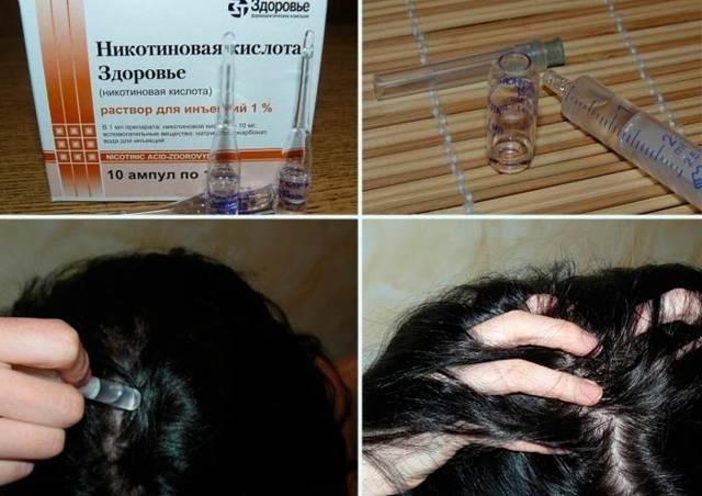 Никотиновая кислота для роста волос: применение, рецепты маски