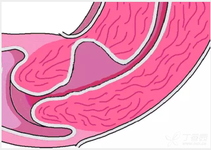 Гематометра после родов