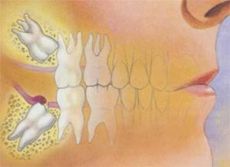 Может ли от зуба мудрости болеть голова и горло