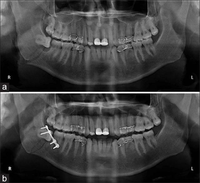 Классификация и методы лечения переломов верхней и нижней челюсти