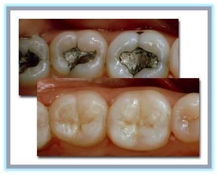 Керамические вкладки на зубы