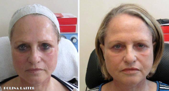 Опухоль после операции на лице. как снять отёк после операции на лице? послеоперационный отек на лице и избавление от него