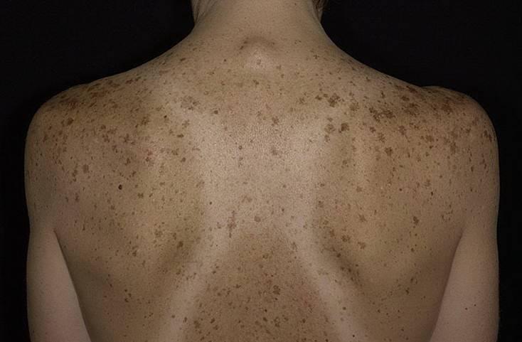 Пигментация кожи и лечение пигментных пятен на лице - причины появления пигментации, способы и виды её лечения, народные средства и секреты по маскировке пигментных пятен