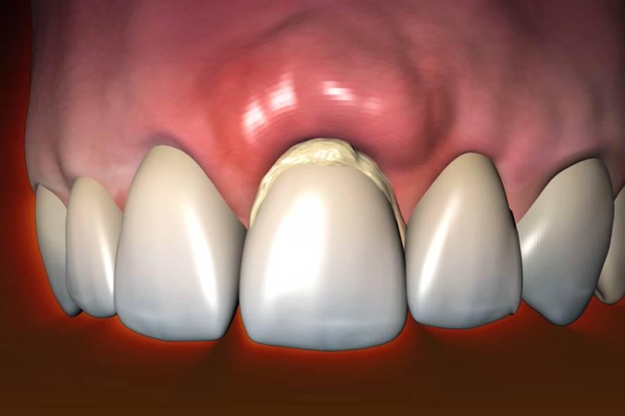 Почему болят передние зубы на нижней челюсти