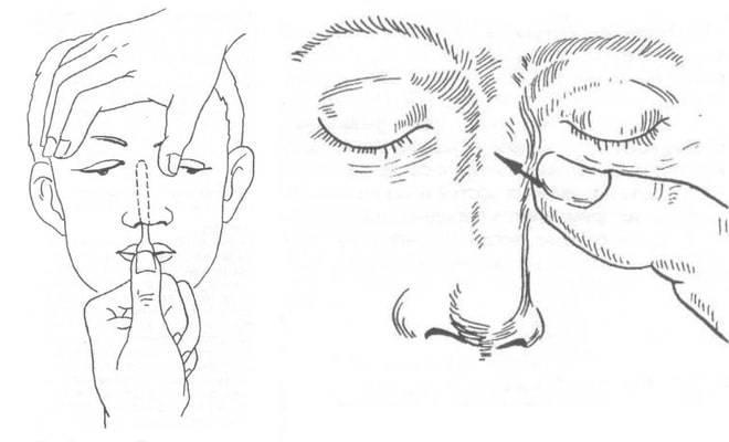 Репозиция костей носа: показания и техника проведения процедуры