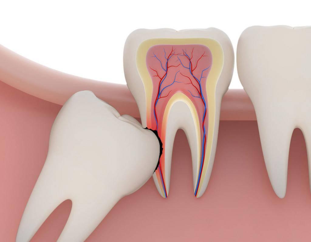 Сложное удаление зубов. сложное удаление зуба: виды, последствия, заживление