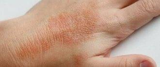 Лучшие мази и крема для лечения дерматита на руках