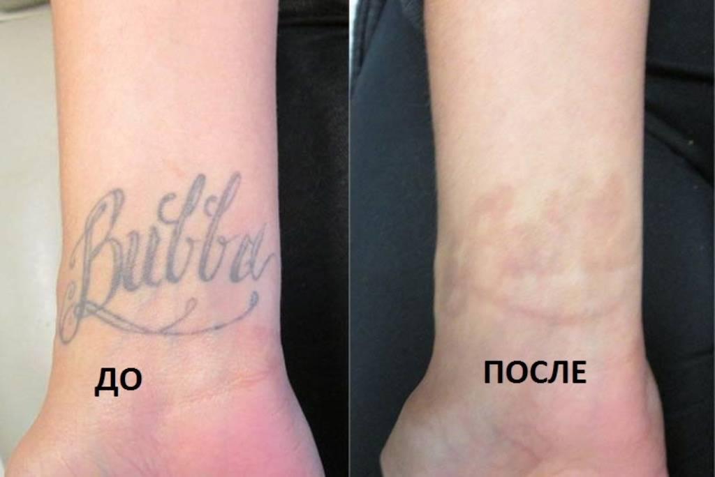 Удаление тату лазером: до и после. отзывы об удалении тату лазером