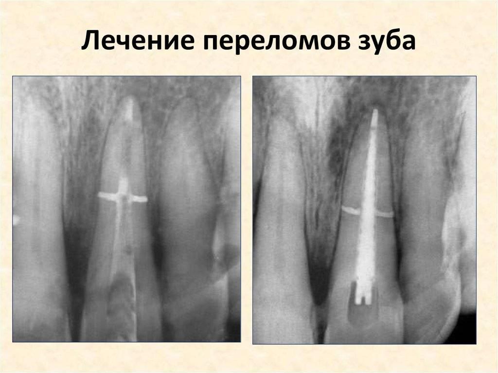 Описание перелома корня зуба: причины, виды, симптоматика и методы лечения