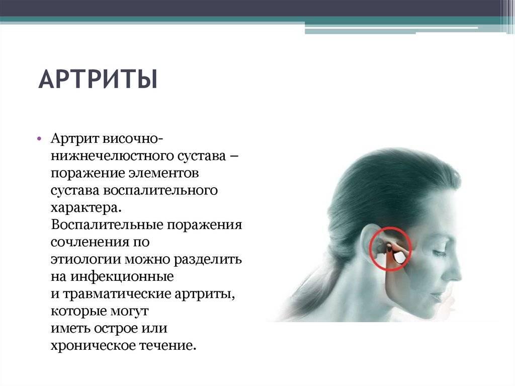 Как лечить артрит челюстно-лицевого сустава?