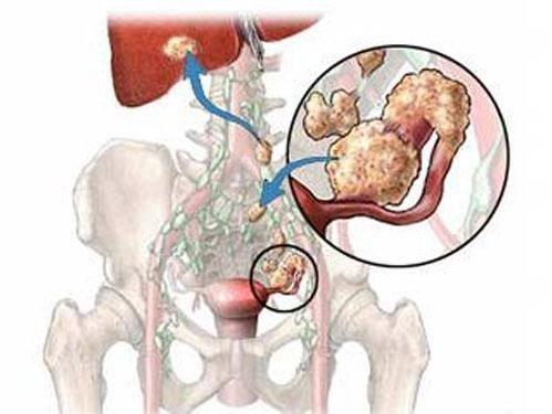 Рак шейки матки 4 стадии