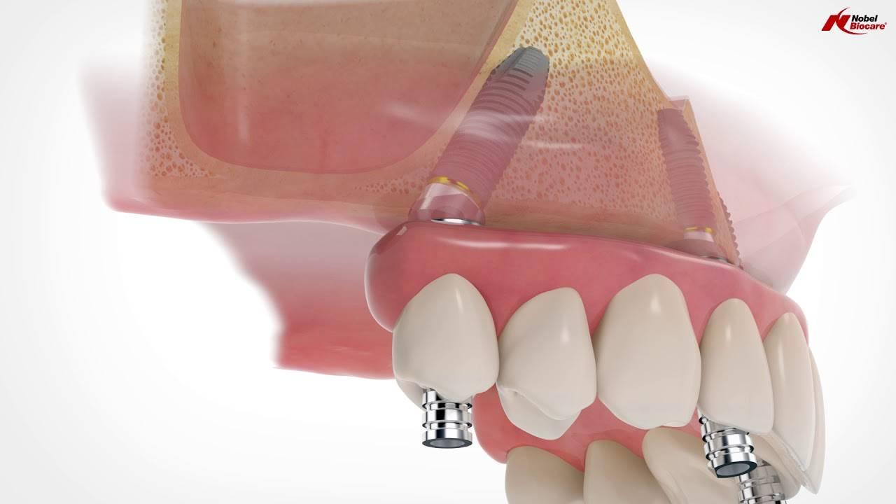 Тайны имплантации зубов, или что врачи скрывают от пациентов