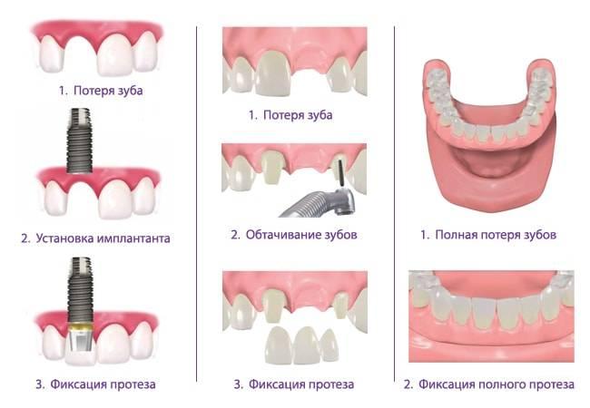 В чём разница между стоматологом и зубным врачом