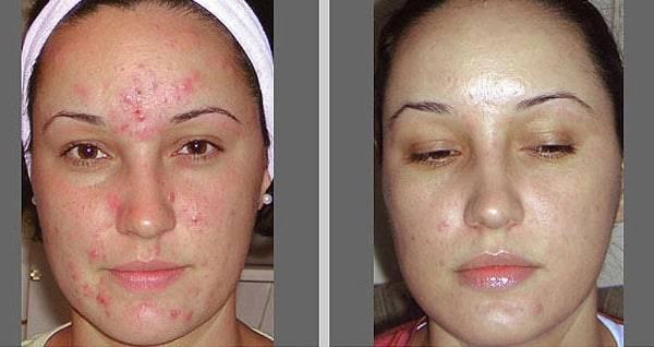 После чистки лица — что делать после комбинированного или механического очищения
