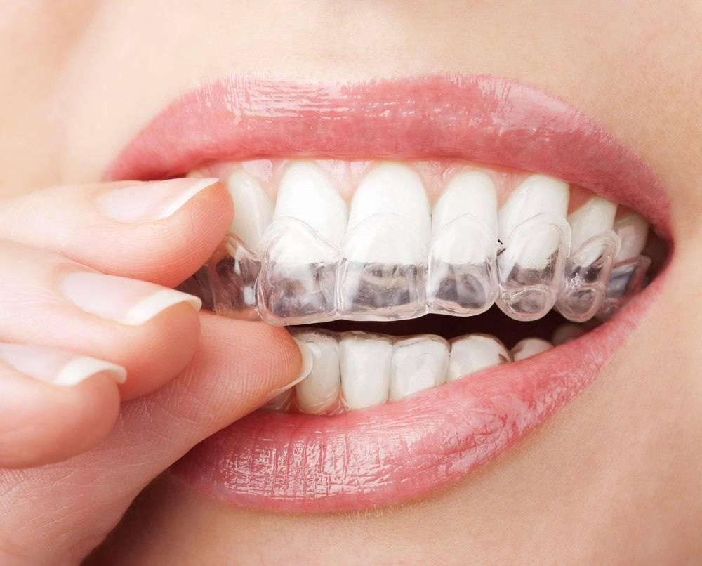 Методы безопасного отбеливания зубов: как выбрать действенный и щадящий