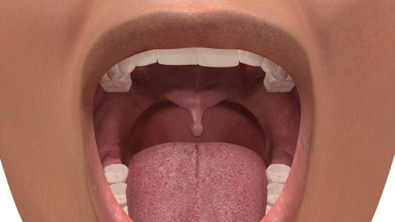 Лечение опухшего язычка в горле