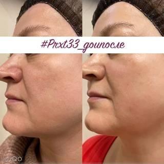 Химический пилинг кожи лица и тела