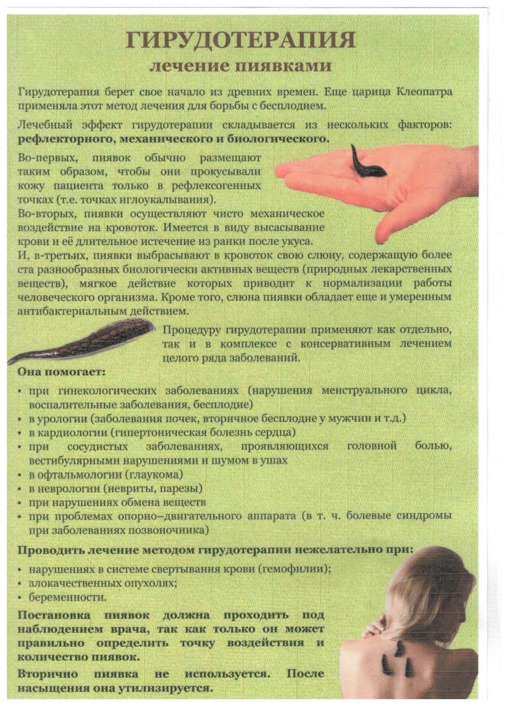 Гирудотерапия в гинекологии – лечение женских болезней пиявками