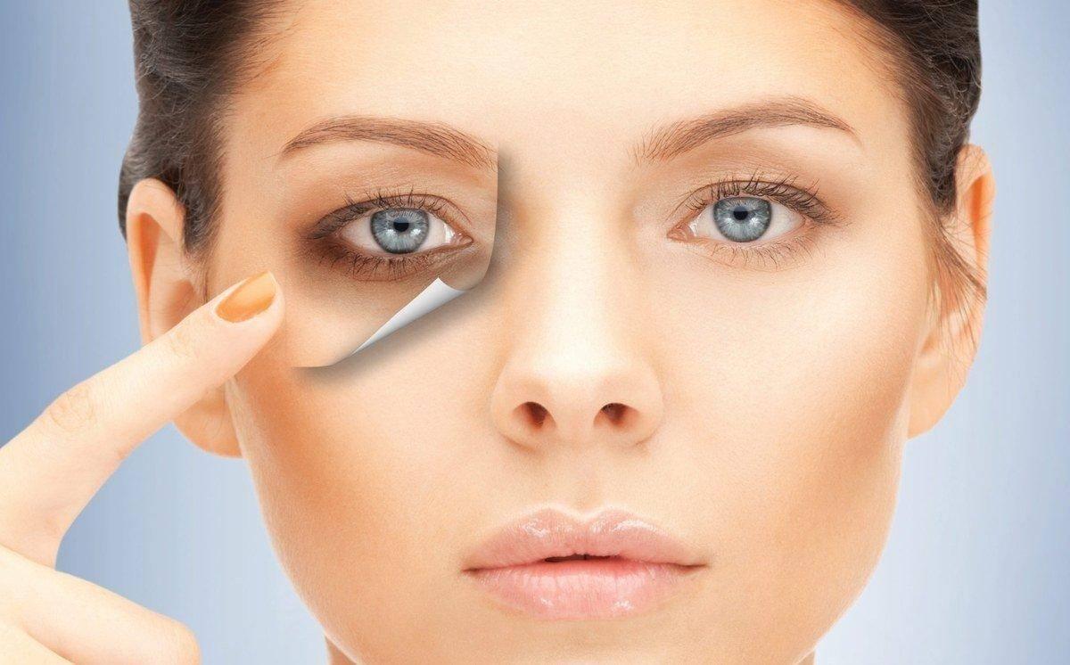 Впадины под глазами как избавиться — четыре метода устранения