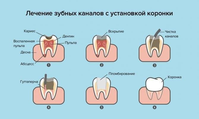 Если болит зуб при нажатии на него