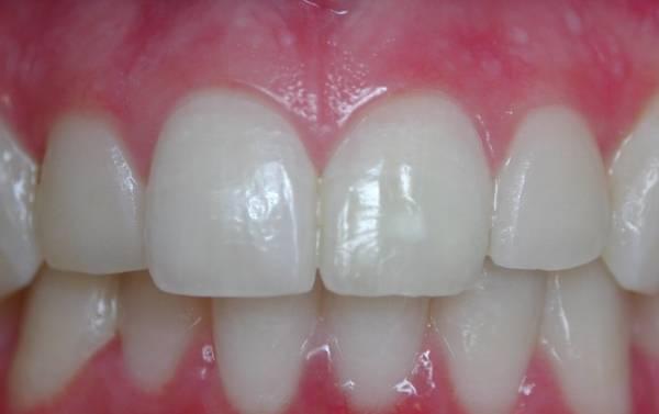 Можно ли делать отбеливание мертвого зуба, или зуба с пломбой. раскрываем секреты