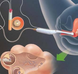 Что такое пункция и биопсия кисты яичника