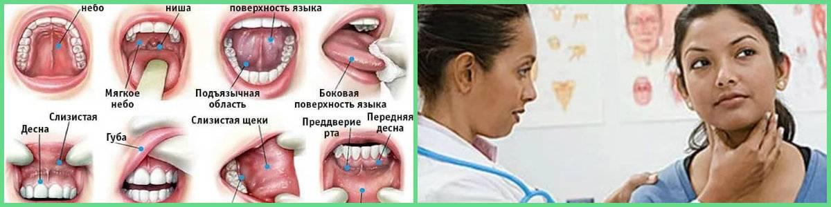 Рак языка: стадии, фото, признаки и симптомы