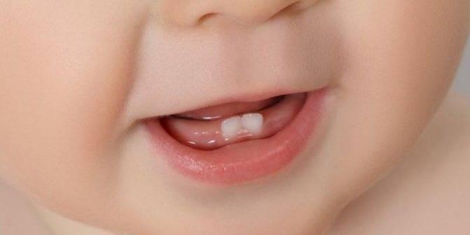 Отек десны у ребенка: фото, причины, лечение, как снять