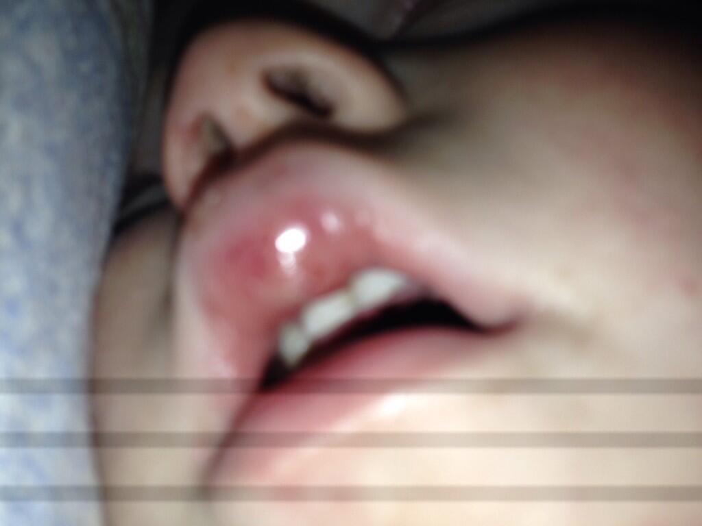 Как убрать отек с губы после удара