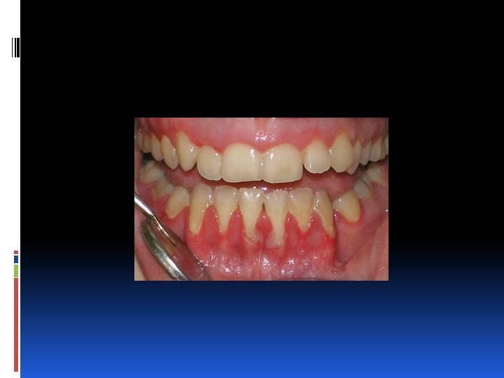 Что делать, если корень зуба (осколок) остался в десне?