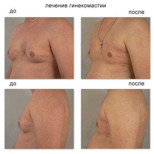 Редукционная маммопластика – уменьшение размера груди