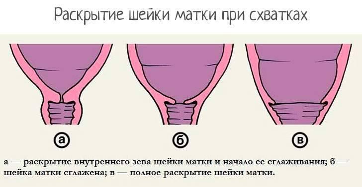Как происходит раскрытие шейки матки?