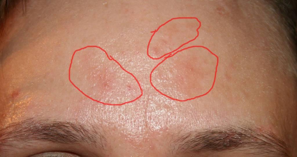 Причины и лечение аллергии на подбородке