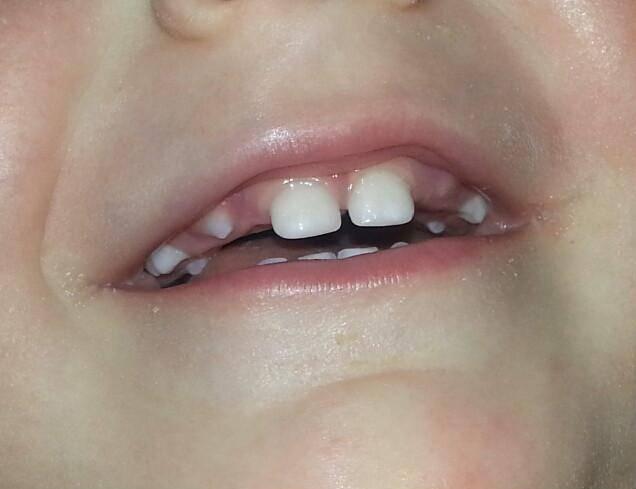 Прорезываются зубы у ребенка