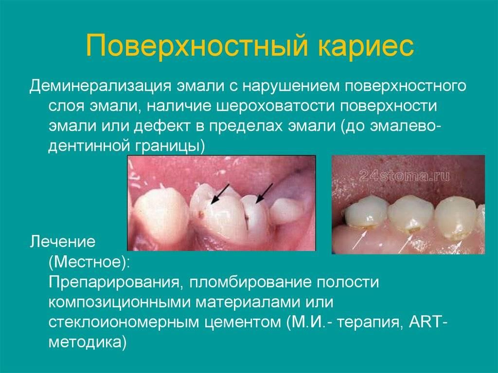 Кариес: симптомы и лечение химки