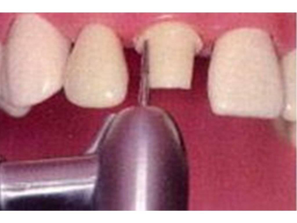 Обточка зубов