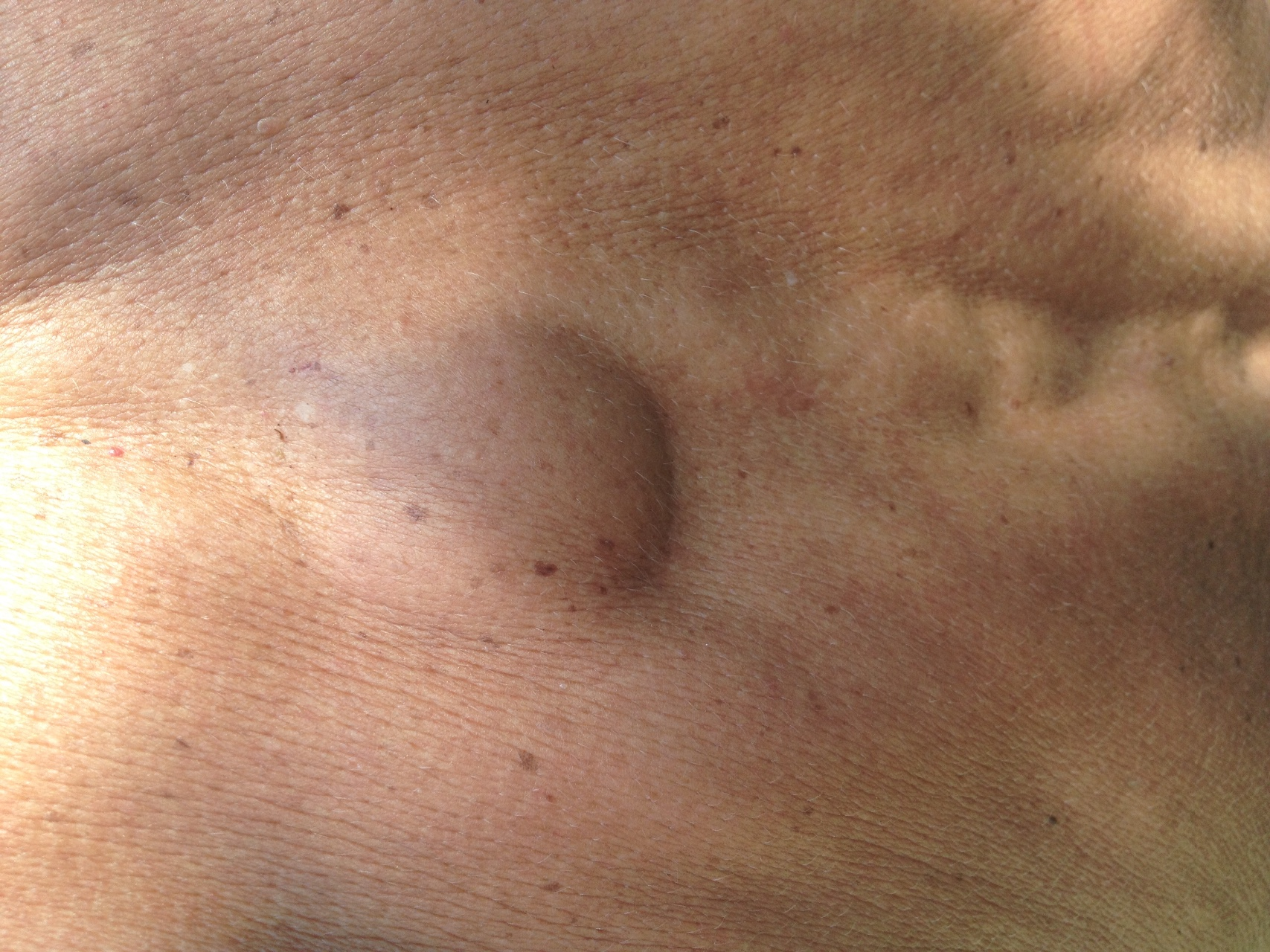 Уплотнение под кожей в виде шарика