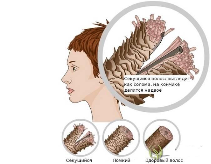 Как правильно ухаживать за волосами, чтобы быстрее росли, не выпадали, после выпрямления, ботокса, мелирования, химической завивки