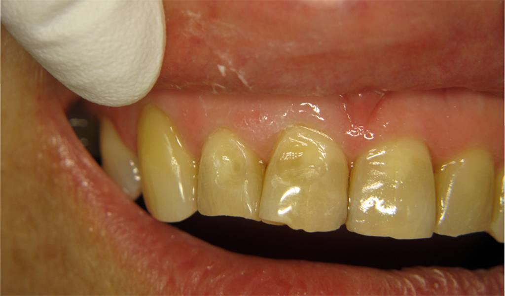 Восстановление зубной эмали — лучшие способы