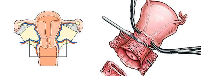 Пластика шейки матки при нарушении формы и целостности органа