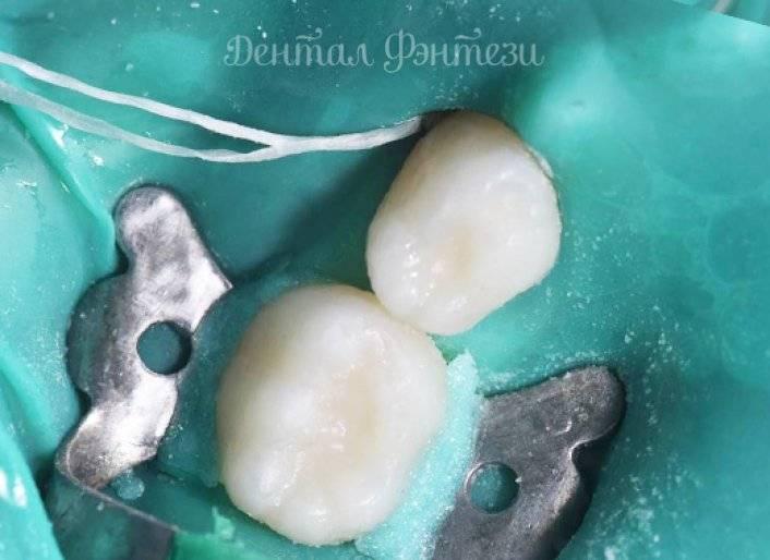 Пульпит молочных зубов, методы лечения