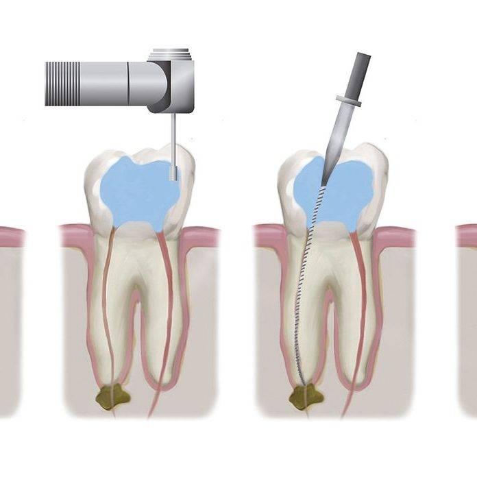 Почему болит зуб после чистки каналов и что с этим делать?