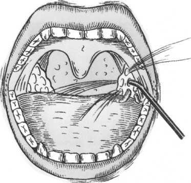 Эффективные способы промывания миндалин при тонзиллите