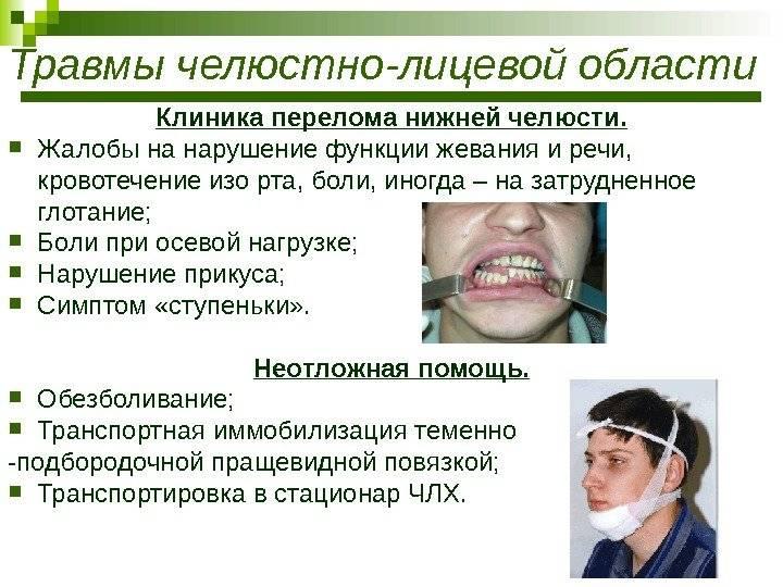 Травматические повреждения челюстно-лицевой области