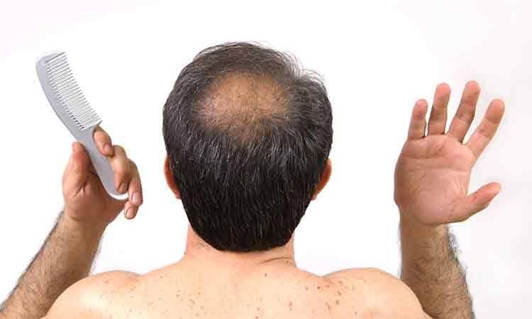 Как остановить выпадение волос при климаксе