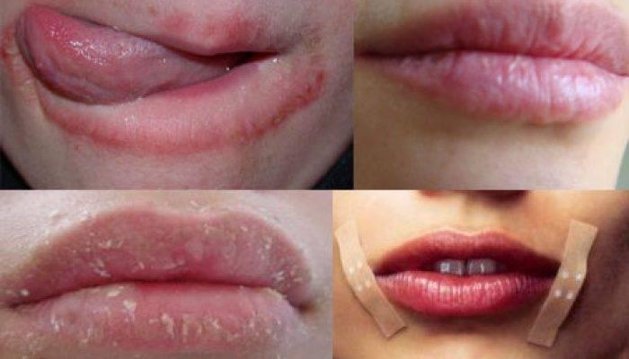 Сохнут губы: основные причины и лучшие рецепты