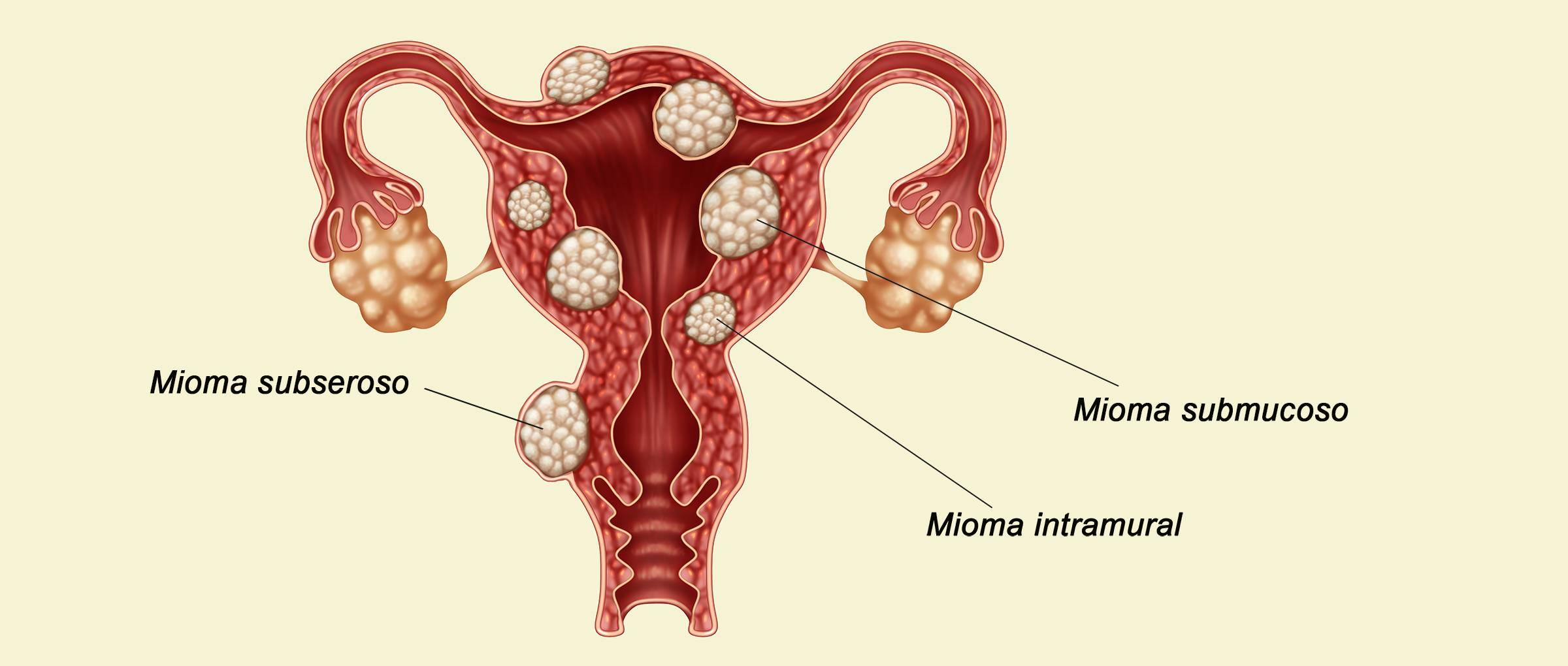 Фиброматоз матки: что это такое?