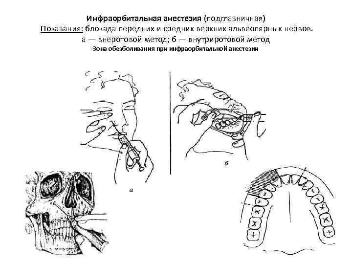 Анестезия в стоматологии, виды анестезии, противопоказания и особенности